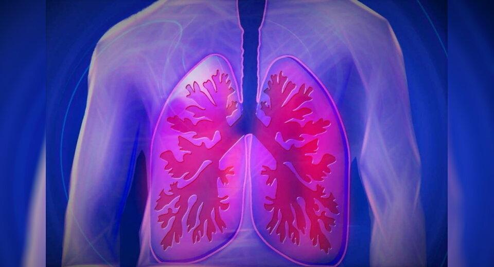 Mehr Lungenerkrankungen bei Rheuma