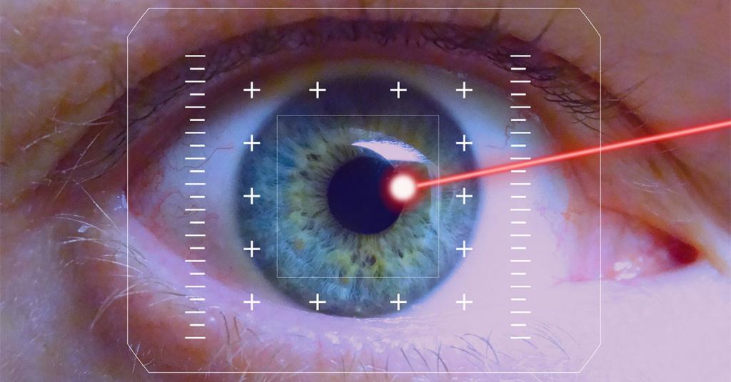 Mit Hilfe eines Laserstrahls wird die Fehlsichtigkeit korrigiert